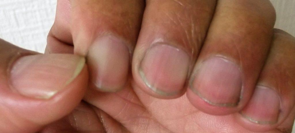 染まった爪