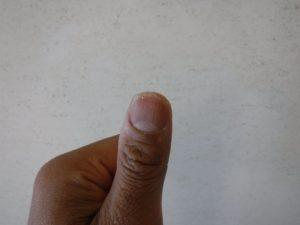 すり減った親指の爪